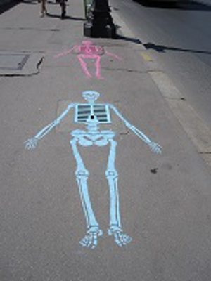 skeleton.alert1 medical alert systems